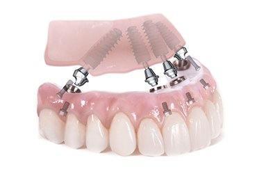 All on Four implant tekniği ile aynı gün dişlerinize kavuşun